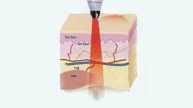 Bild von Şeker Hastalarının İyileşmeyen Yaralarında Yeni Yöntem