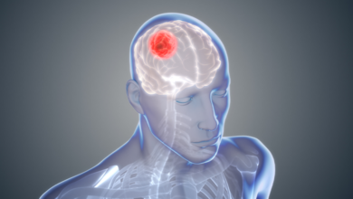 Bild von Beyin Tümöründe 7 Belirti