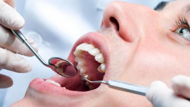 Bild von Covid 19 ve Diş Eti İltihabı Süperenfeksiyon Sebebi